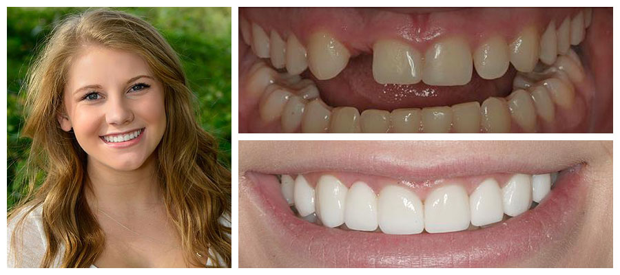 Actual patient of Dr. Shawn Keller, a Kirkland implant dentist - before and after CeraRoot