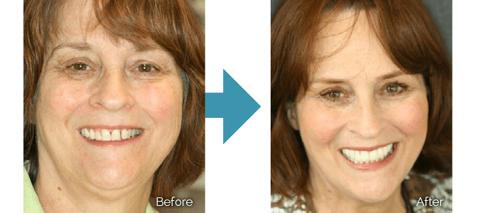 Before and after photos of Dr. Keller's patient who used T-Scan technology
