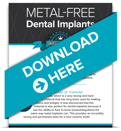 Metal-free Dental Implants infographic - download it for free