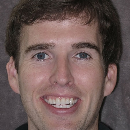 Bryan - actual patient who went through cosmetic and implant dentistry at Smiles By Design a dentist in Redmond, WA