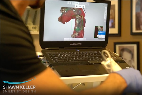 Preview of the dental technology video from Smiles By Design