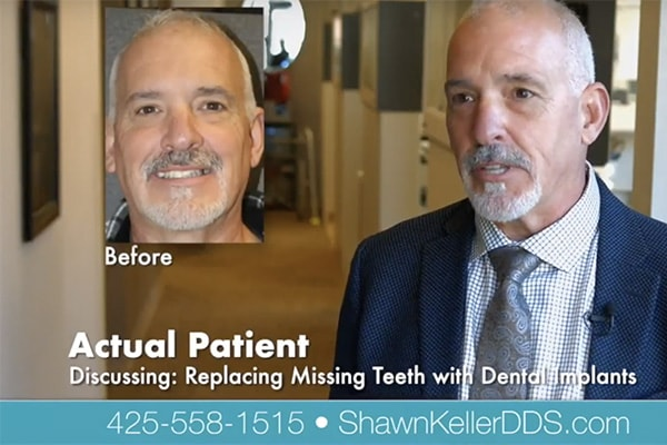 Video preview image of Mike of received dental implants from Dr. Shawn Keller