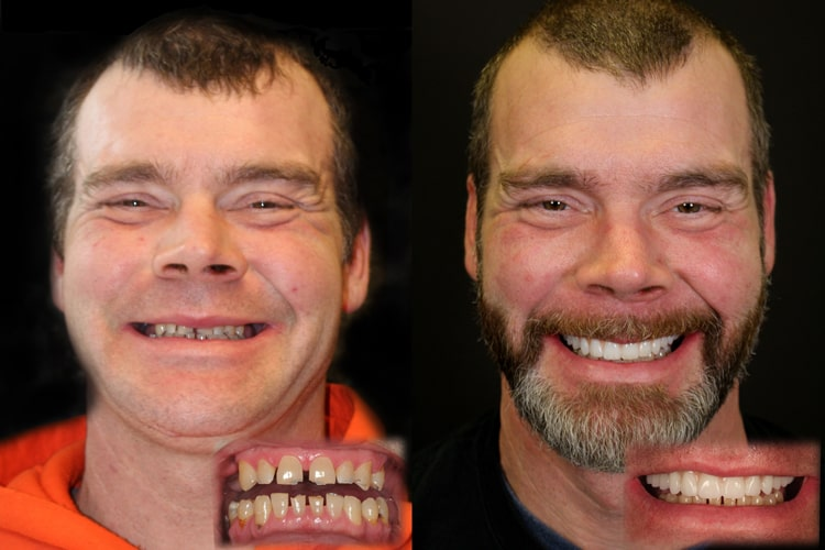 Actual patient of this dentist in Kirkland, Dr. Shawn Keller - Smiles by Design