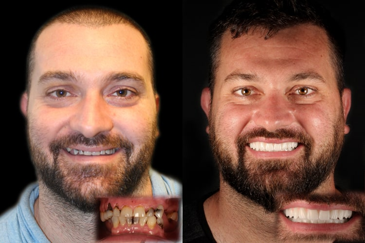 Actual patient of Kirkland dentist, Dr. Shawn Keller - Smiles by Design