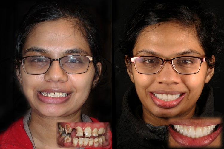 Actual patient of Smiles by Design