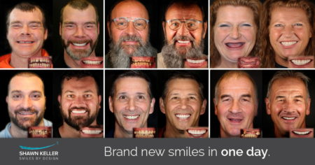 Before and afters of Dr. Shawn Keller's patients with their brand new smiles in one day.