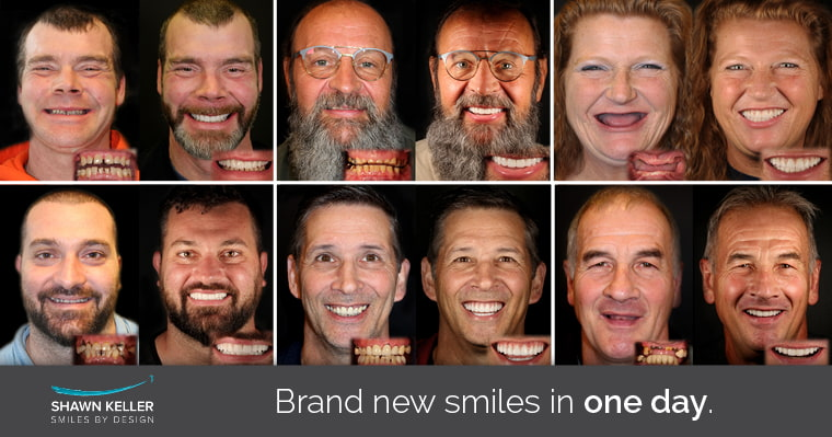 Before and afters of Dr. Shawn Keller's patients with their brand new smiles using alternatives to dentures