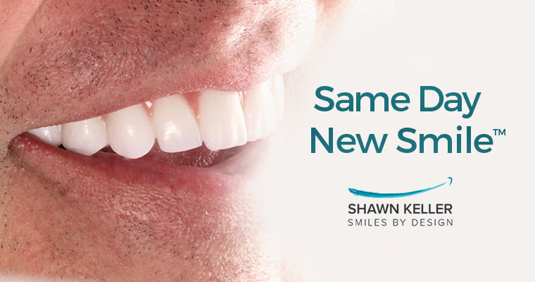 Same Day New Smile by Shawn Keller Smiles by Design