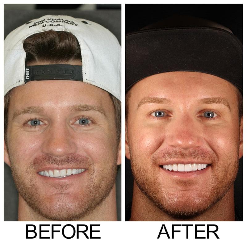 Dentist Redmond WA   Dr  Shawn Keller DDS - Smiles By Design