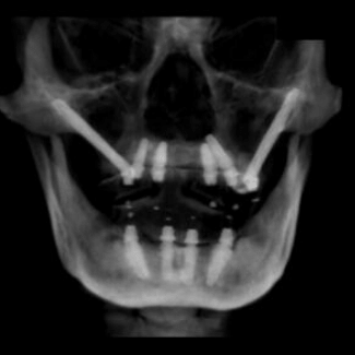 An x-ray showing traditional and zygomatic dental implants by our dentist in Kirkland, WA