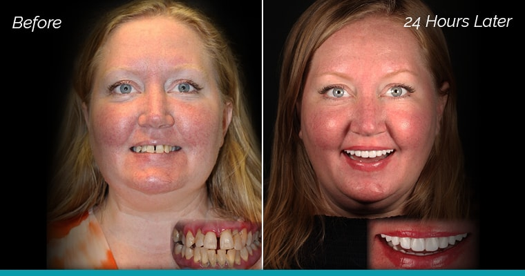 A female patient's before and after Same Day New Smile photos.