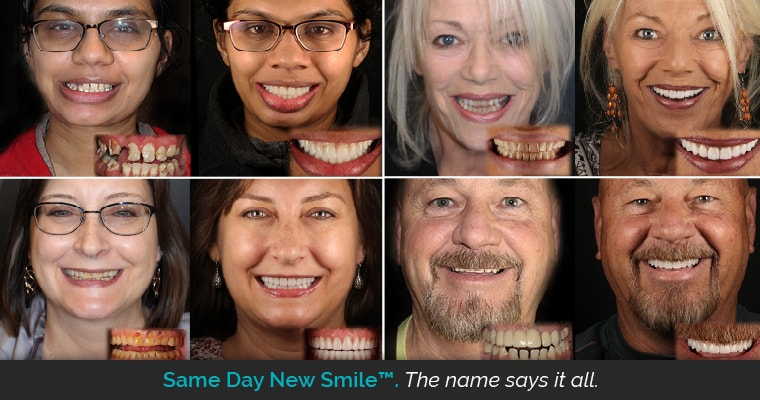 Four before and after Same Day New Smile cases by Dr. Keller