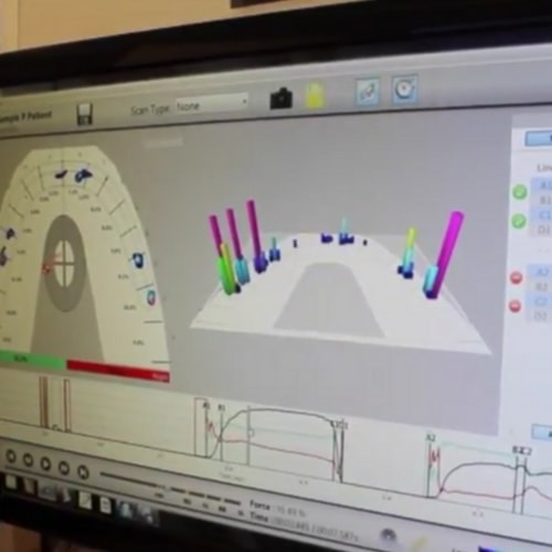 Technology visual of the Tekscan Bite Scanner