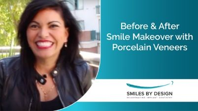 Preview of a video testimonial from Vanessa, a porcelain veneers patient in Kirkland, WA, with before and after photos