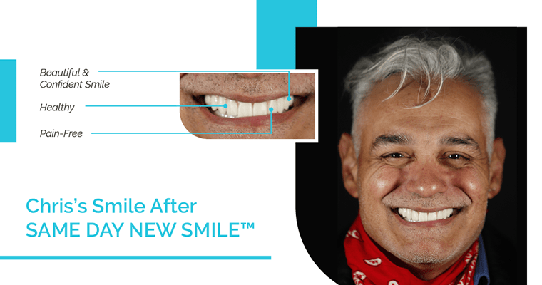 Chris's smile after Same Day New Smile (same-day dental implants) with a beautiful and confident smile, healthy and pain-free teeth.
