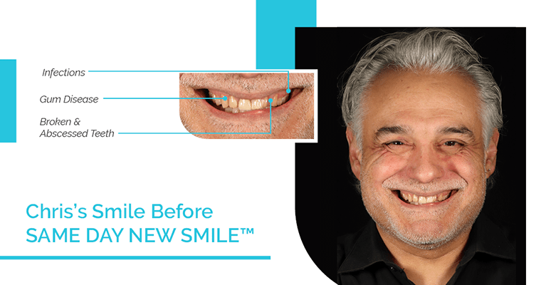 Chris's smile before Same Day New Smile (same-day dental implants) with gum disease, infections, and broken and abscessed teeth