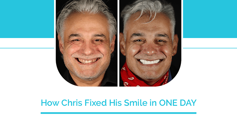 "Before and after photos with text, ""How Chris Fixed His Smile in One Day"""