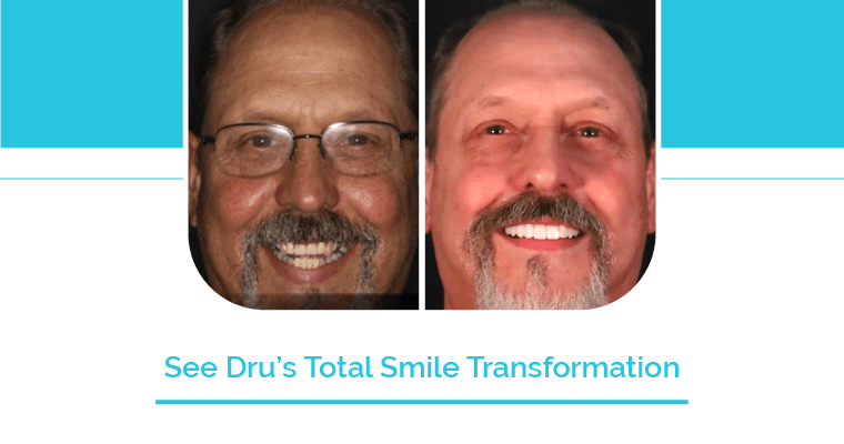 Before and after Dru's smile transformation